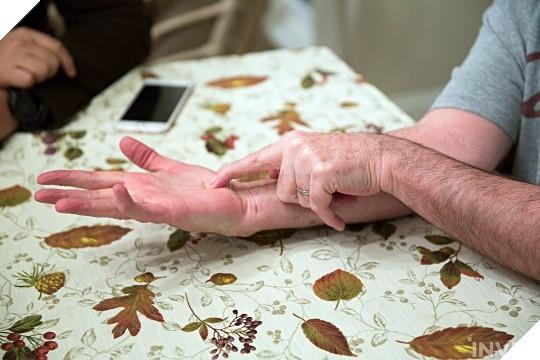 Bàn tay phải của GrndPaGaming, nơi đã từng bị một viên đạn bắn xuyên qua tay