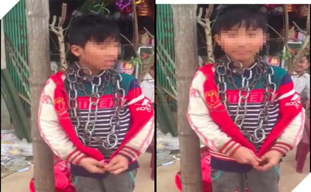 Hình ảnh bé trai bị xích cổ được đăng tải trên mạng xã hội. (Ảnh: Cắt từ clip)