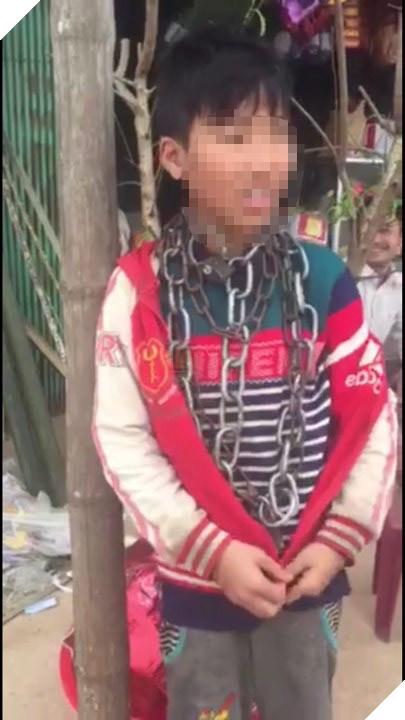 Hình ảnh cháu N. bị xích cổ sau khi được đăng tải trên mạng xã hội gây xôn xao dư luận.